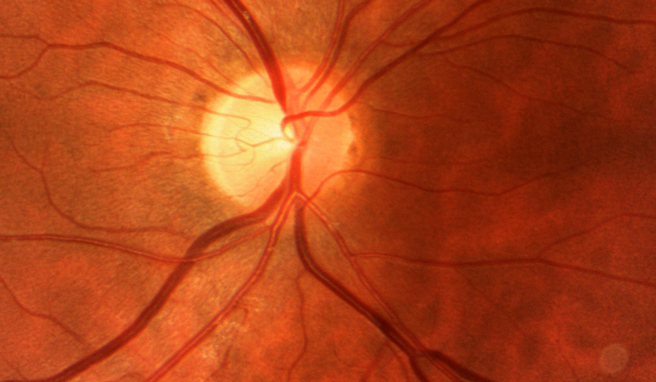 Fundus image: vascular structure of the retina
