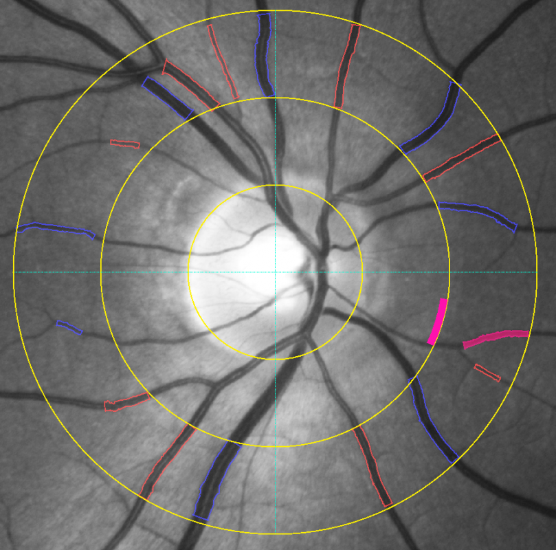 Examination of static vessel analysis: exemplary image of the ocular fundus with measurement grid (ring zone)