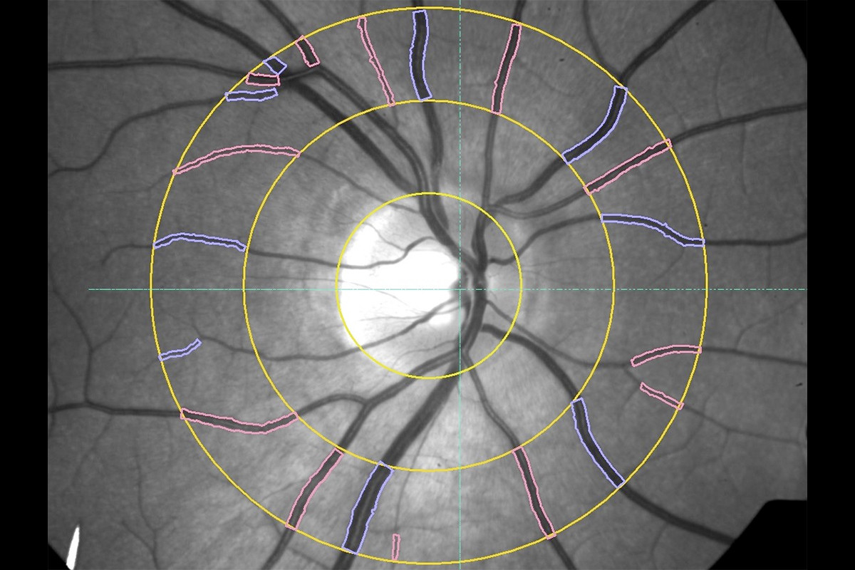 VesselMap aric: Image of the ocular fundus with measuring range